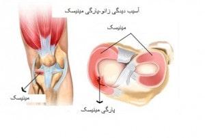 آسیب دیدگی ساختارهای زانو