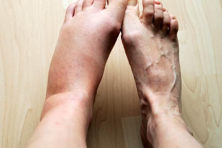 ارتباط ورم پا و تیروئید چیست و برای کاهش ورم پا چه باید کرد؟