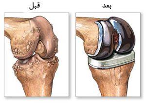 استفاده از تکنیکهای مدرن جراحی