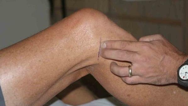 تشخیص پارگی مینیسک با انجام معاینه فیزیکی