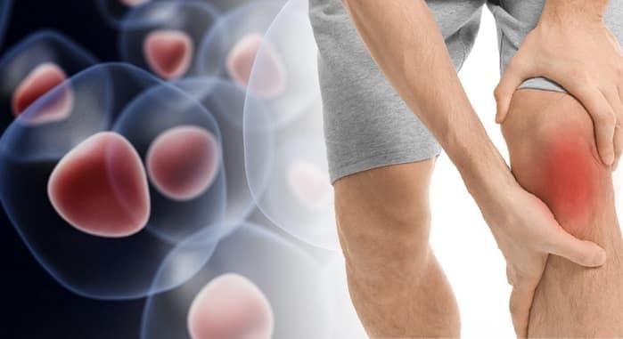 تزریق سلول های بنیادی به زانو برای آرتروز