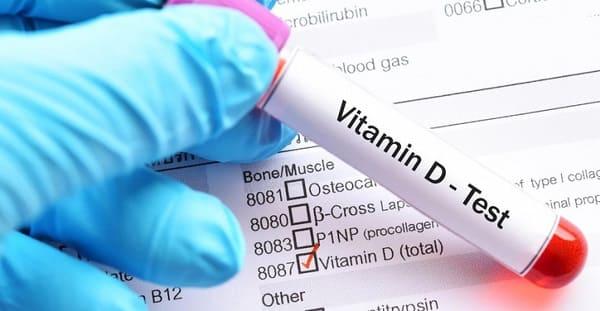 تشخیص کمبود ویتامین دی