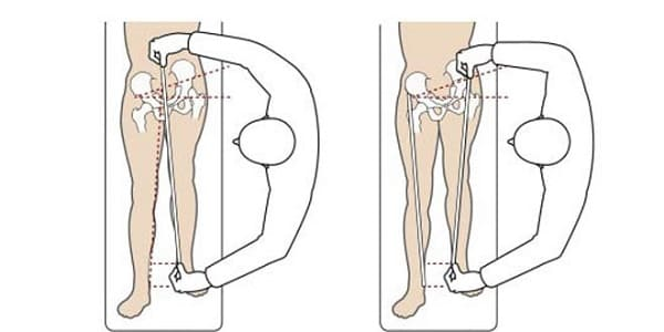 تشخیص کوتاهی پا