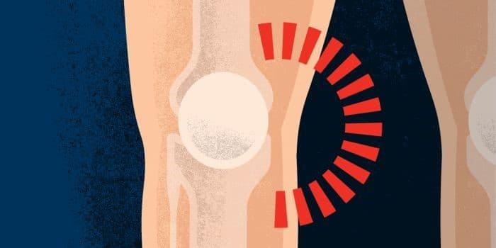 درد بخش داخلی و جانبی زانو