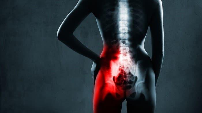 درد مفصل ساکروایلیاک چگونه است؟