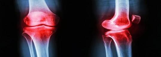 درمان استئوآرتریت زانو