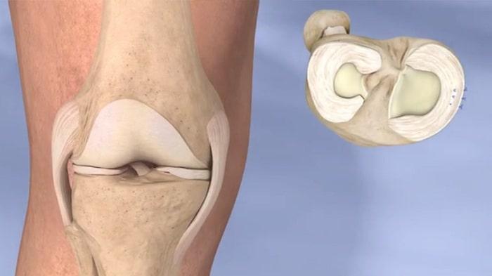 درمان پارگی منیسک خارجی زانو