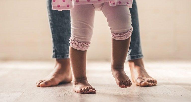 درمان پای پرانتزی در کودکان با مصرف ویتامین D، بریس و جراحی