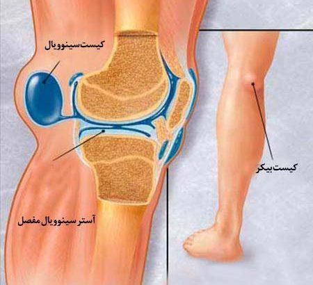 درمان کیست بیکر (ورم پشت زانو) بدون جراحی