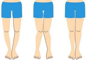زانوی ضربدری و پای پرانتزی