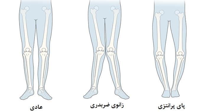 زانوی ضربدری یا پرانتزی از علل اختلال در الگوی راه رفتن کودکان