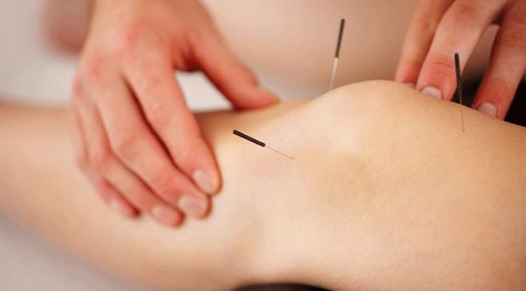 طب سوزنی زانو برای درمان مینیسک، ورم، آرتروز و درد زانو