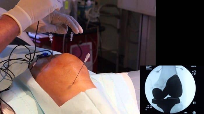 عصب کشی زانو (RF) چگونه انجام میشود و مراقبتهای بعد از آن چیست؟