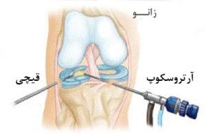 عمل جراحی آرتروسکوپی زانو