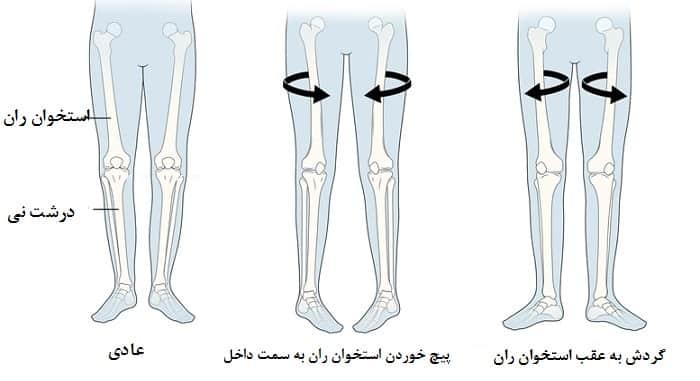 ورسیون استخوان ران از علل اختلال در الگوی راه رفتن کودکان