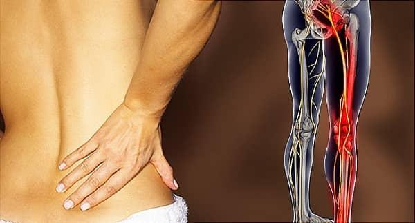 چه چیزی باعث درد سیاتیک میشود؟