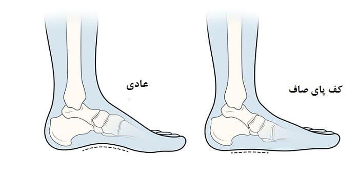کف پای صاف از علل اختلال در الگوی راه رفتن کودکان