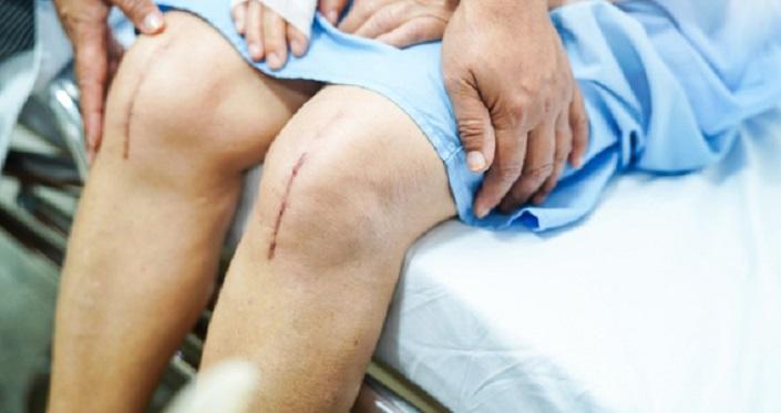مشکلات بعد از عمل زانو: خشکی و صدا دادن زانو، آسیب عصب و لختگی خون