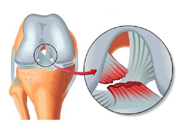 آسیب رباط های زانو